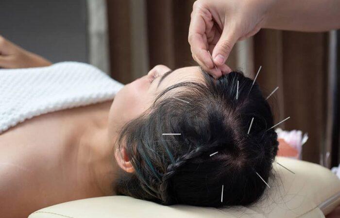 acupuncture programs Admissions